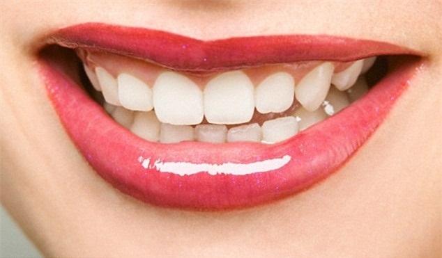 Chuyên gia tiết lộ cách làm trắng răng bằng thực phẩm