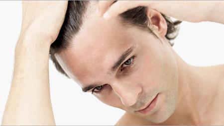 Stress. Nguyên Nhân Gây Rụng Tóc