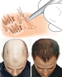 Những giải pháp trị rụng tóc hiệu quả cho nam giới