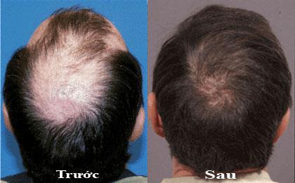 Mua thuốc mọc tóc Exellent Hair ở đâu?