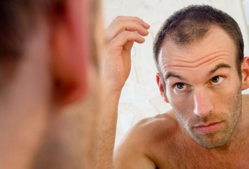 Trị hói đầu bằng cách tự nhiên