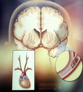 Cục máu đông gây nghẽn mạch