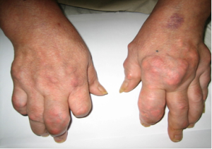 Hình ảnh tổn thương khớp trong bệnh lý thấp khớp.