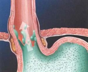 Trào ngược dạ dày - thực quản