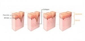 Xóa vết nhăn sau vài lần điều trị