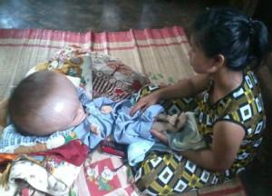 Em bé bị bệnh não úng thủy cần giúp đỡ