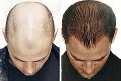 Cách chữa rụng tóc và chăm sóc tóc tốt nhất