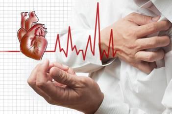 Tổng quan về nhồi máu cơ tim
