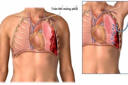 Chuẩn đoán và xử trí tràn khí màng phổi