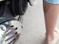 Phương pháp trị sẹo ở chân đơn giản mà hiệu quả