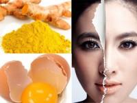 Một số cách trị nám da bằng trứng gà hiệu quả