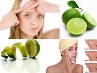 5 cách trị mụn bằng chanh siêu hiệu quả
