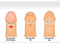 Tại sao sao nam giới cần phải cắt bao quy đầu