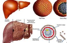 Cà gai leo hoạt chất làm âm tính virus viêm gan B