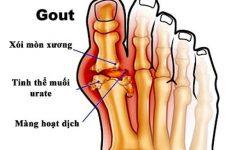 Bệnh gout có chữa được không? Làm thế nào để chữa hiệu quả?