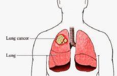 Bệnh ung thư phổi có chữa được không?