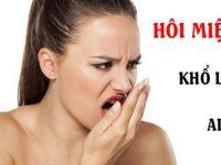 Lạc trôi cùng top 3 cách chữa hôi miệng tận gốc tại nhà