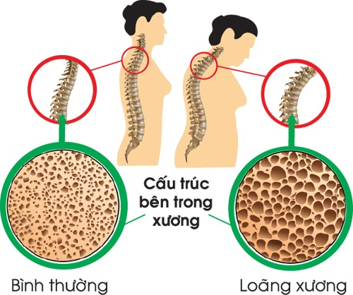 Các phương pháp chăm sóc sức khỏe và ngăn ngừa loãng xương hiệu quả