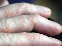 Phương pháp chữa bệnh chàm tổ đỉa hiệu quả nhất