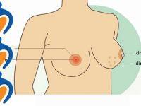 7 dấu hiệu giúp nhận biết bệnh ung thư vú sớm nhất
