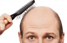 Tiết lộ mẹo chữa rụng tóc ở nam giới hiệu quả nhất