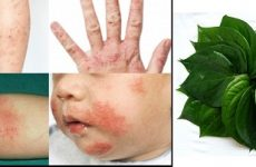 Tiết lộ cách chữa bệnh tổ đỉa bằng lá trầu không bí truyền