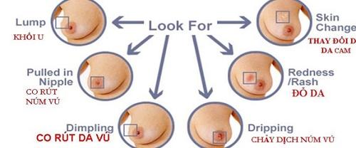 Biểu hiện của bệnh ung thư vú