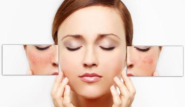 Cách nào điều trị mụn trên da hiệu quả?