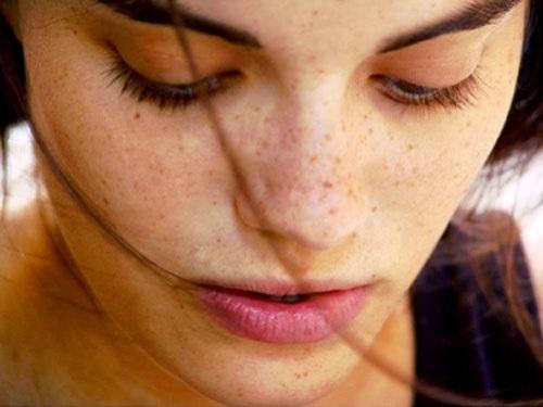 Nguyên nhân gây tàn nhang là gì?