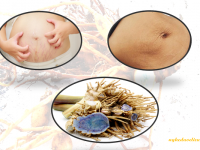 3 Cách trị rạn da sau sinh bằng nghệ đen