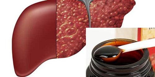 Điều trị ung thư gan bằng cao hồng sâm hàn quốc