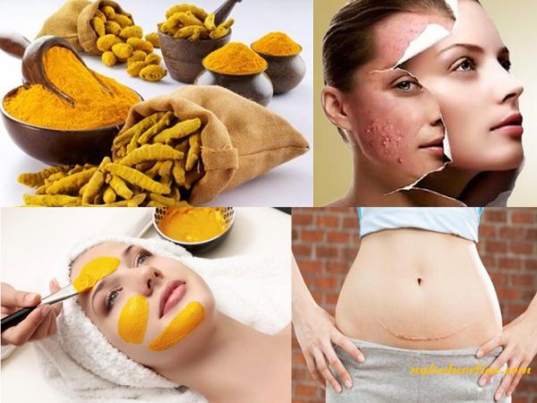 Cách làm mặt nạ nghệ trị mụn cho da dầu hiệu quả
