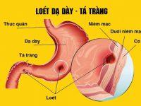 6 Nguyên nhân chính gây nên bệnh viêm loét dạ dày và cách điều trị