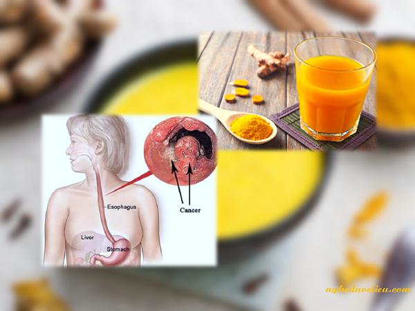 Cách điều trị bệnh viêm loét dạ dày