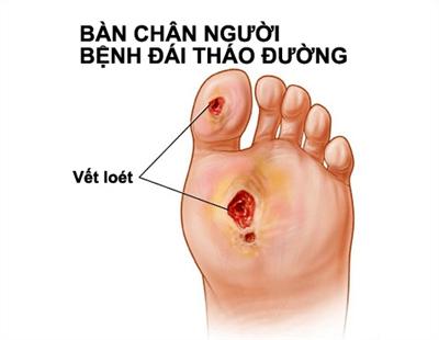 dấu hiệu lạ ở bàn chân