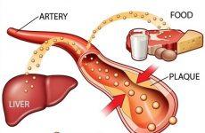 Mỡ máu sẽ gây ra nhiều biến chứng nếu không điều trị kịp thời