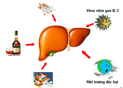 Nguyên nhân của bệnh suy gan