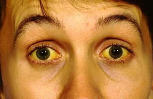 Bệnh vàng da, vàng mắt