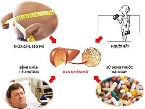 Nguyên nhân gây gan nhiễm mỡ cấp độ 1