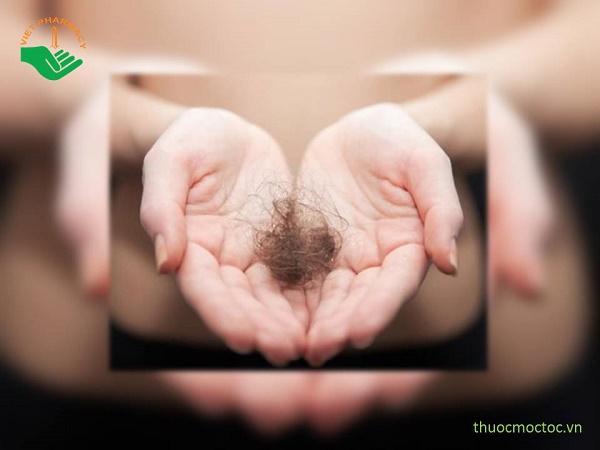 Tại sao tóc rụng nhiều bất thường? Phải làm sao đây?