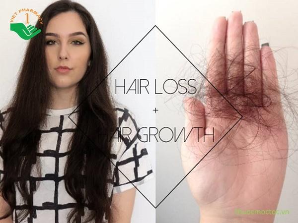 Tại sao tóc rụng nhiều bất thường
