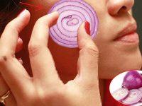 4 cách trị nám, tàn nhang hiệu quả tại nhà