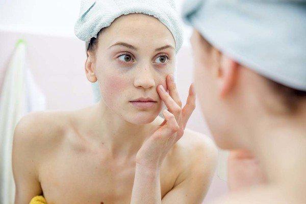 Tại sao cần sử dụng nước tẩy trang cho da nhạy cảm?