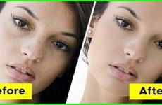 6 cách trị mụn đầu đen vùng mũi sạch mụn sau 14 ngày áp dụng