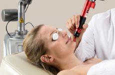 Điều trị tàn nhang lâu năm bằng công nghệ laser là con dao 2 lưỡi