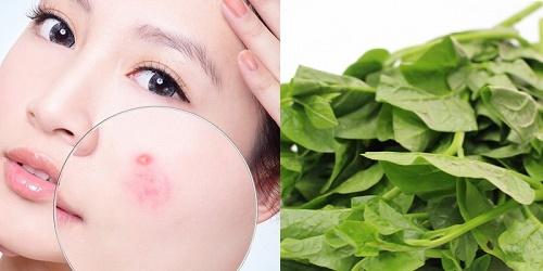 Cách trị mụn, thâm bằng rau mồng tơi hiệu quả không nên bỏ lỡ