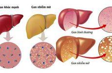 Gan nhiễm mỡ nên tránh những thực phẩm nào?