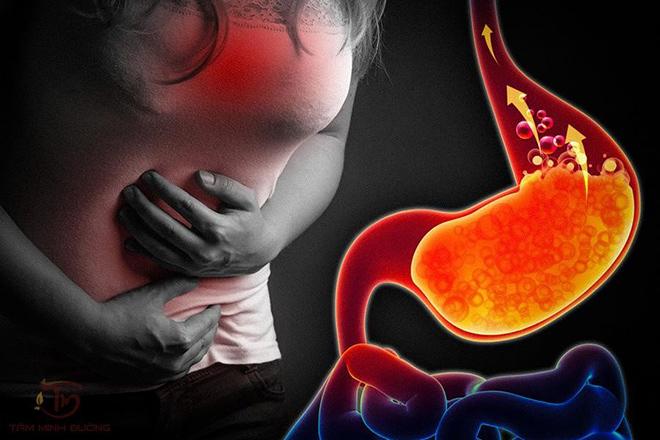 5 bài thuốc nhân gian chữa trào ngược dạ dày hiệu quả nhất