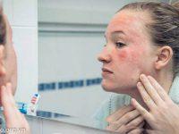 Điều trị da bị nghiện corticoid
