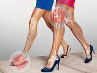 Bệnh lý xương khớp từ giày cao gót bạn cần lưu ý